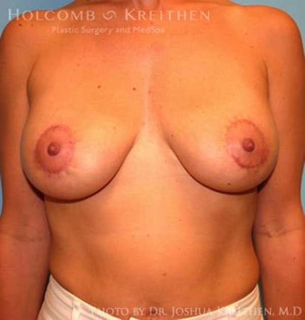Breast Augmentation with Lift Gallery - Patient 6276482 - Image 2