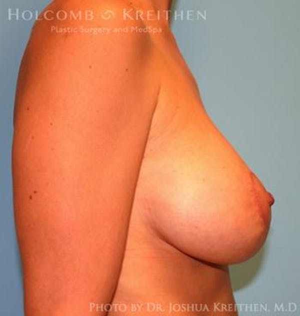 Breast Augmentation with Lift Gallery - Patient 6276482 - Image 6