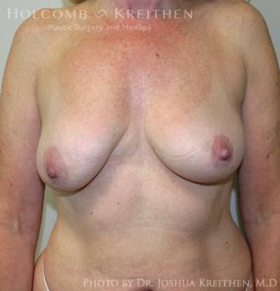 Breast Augmentation with Lift Gallery - Patient 6276483 - Image 14