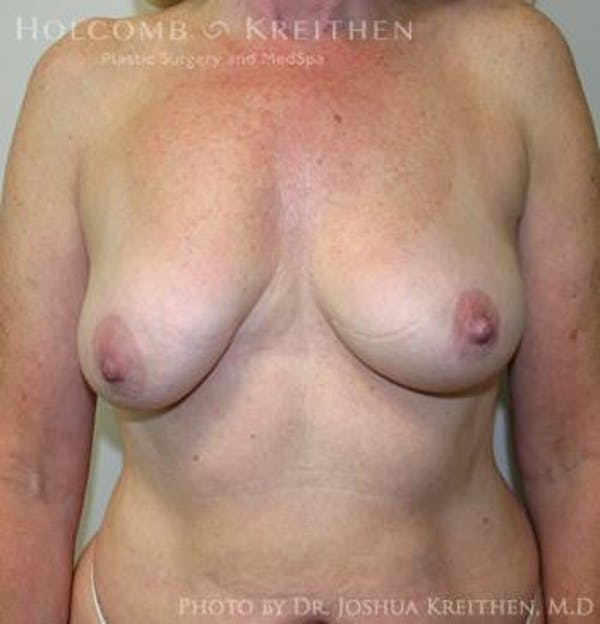 Breast Augmentation with Lift Gallery - Patient 6276483 - Image 1