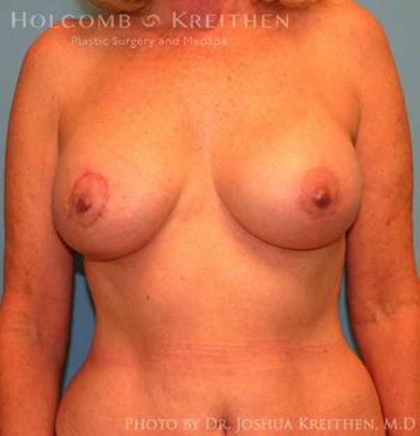 Breast Augmentation with Lift Gallery - Patient 6276483 - Image 2