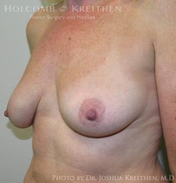 Breast Augmentation with Lift Gallery - Patient 6276483 - Image 5