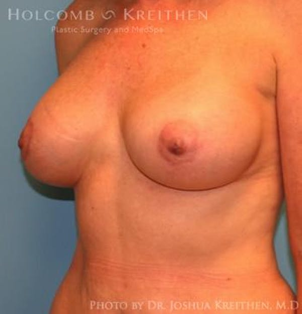 Breast Augmentation with Lift Gallery - Patient 6276483 - Image 6