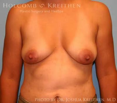 Breast Augmentation with Lift Gallery - Patient 6276487 - Image 1