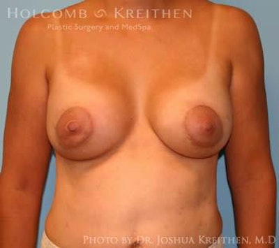 Breast Augmentation with Lift Gallery - Patient 6276487 - Image 2