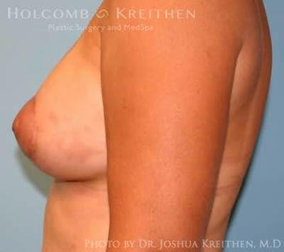 Breast Augmentation with Lift Gallery - Patient 6276487 - Image 6