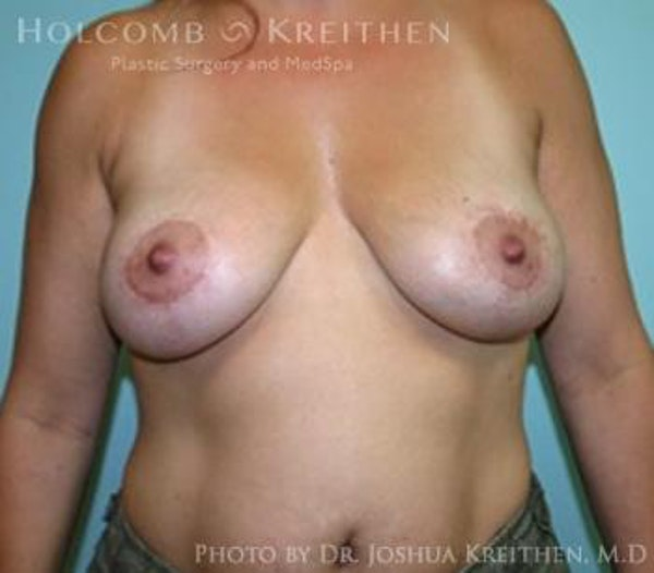 Breast Lift Gallery - Patient 6276537 - Image 2
