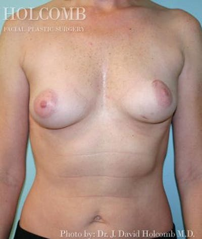 Breast Reconstruction Gallery - Patient 6276538 - Image 1