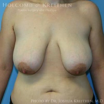Breast Lift Gallery - Patient 6276540 - Image 1