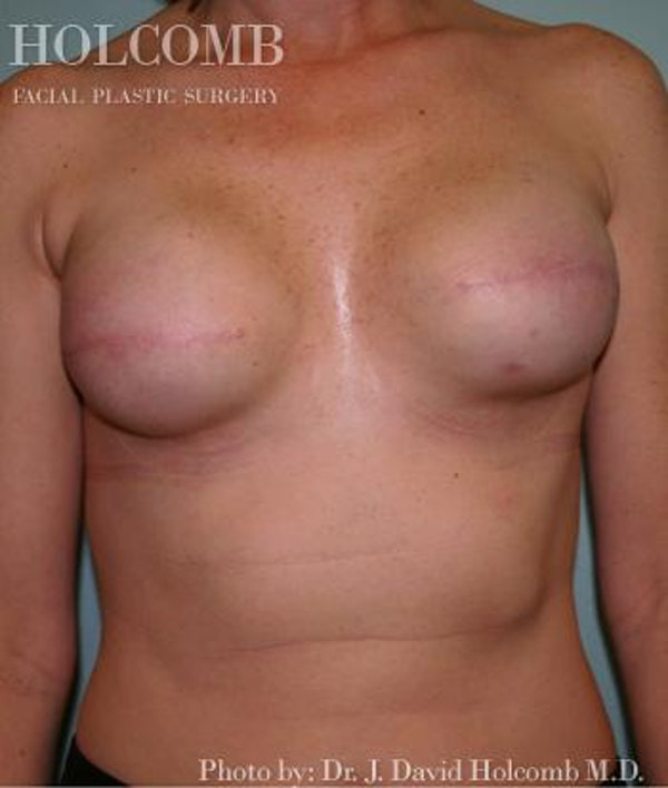 Breast Reconstruction Gallery - Patient 6276538 - Image 2