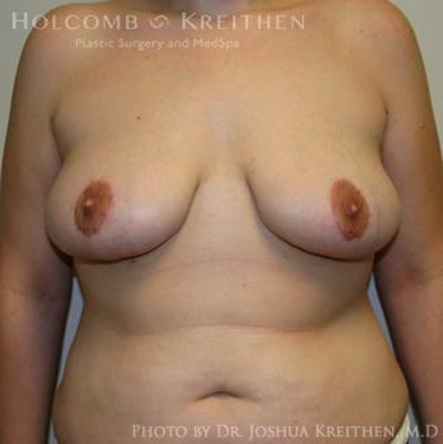 Breast Lift Gallery - Patient 6276540 - Image 2