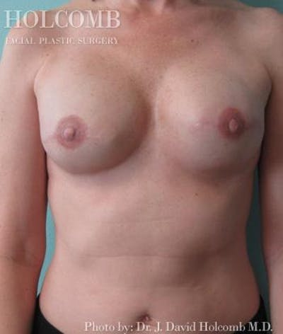 Breast Reconstruction Gallery - Patient 6276538 - Image 4