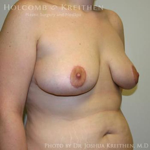 Breast Lift Gallery - Patient 6276540 - Image 4