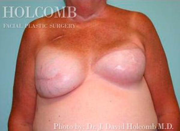 Breast Reconstruction Gallery - Patient 6276539 - Image 1