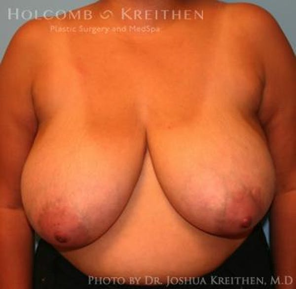 Breast Reduction Gallery - Patient 6276542 - Image 1
