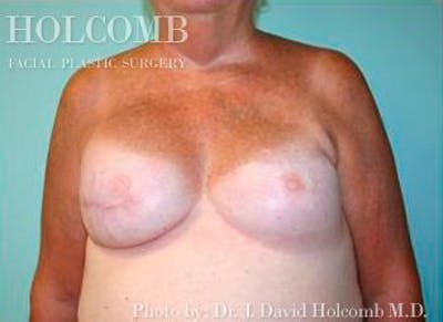 Breast Reconstruction Gallery - Patient 6276539 - Image 2