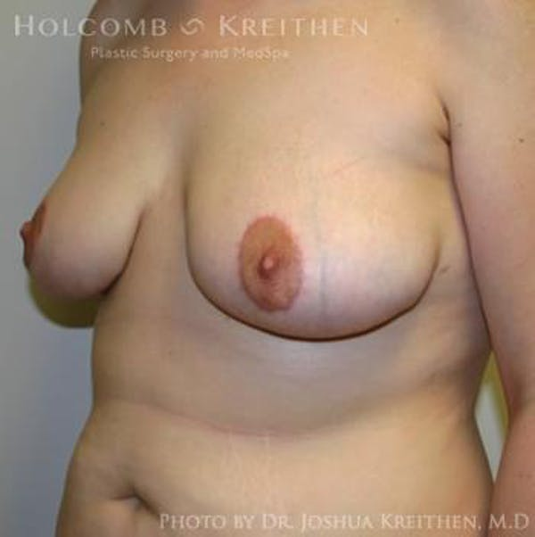 Breast Lift Gallery - Patient 6276540 - Image 6