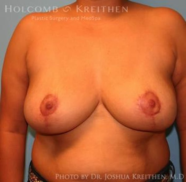 Breast Reduction Gallery - Patient 6276542 - Image 2