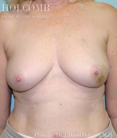Breast Reconstruction Gallery - Patient 6276541 - Image 3