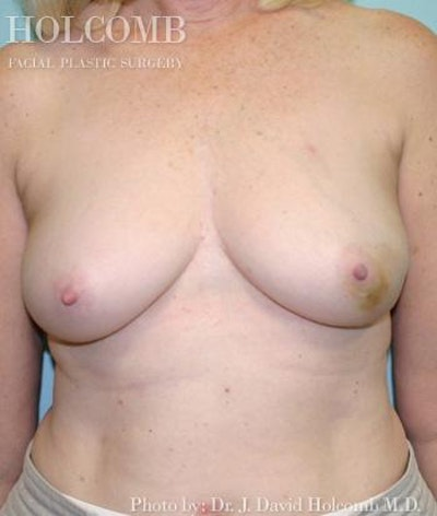 Breast Reconstruction Gallery - Patient 6276541 - Image 1