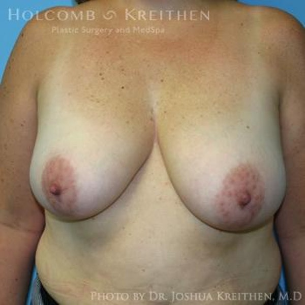 Breast Lift Gallery - Patient 6276545 - Image 1