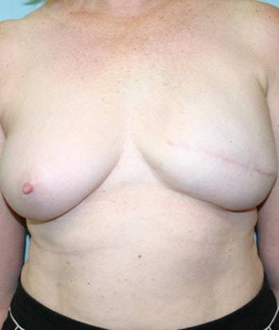 Breast Reconstruction Gallery - Patient 6276541 - Image 2