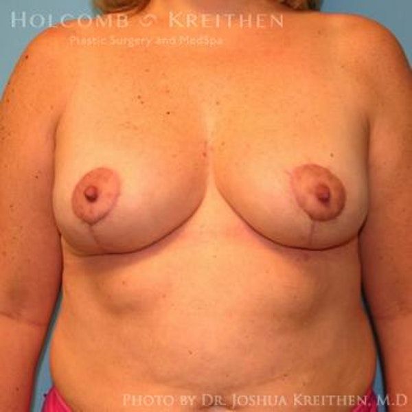 Breast Lift Gallery - Patient 6276545 - Image 2