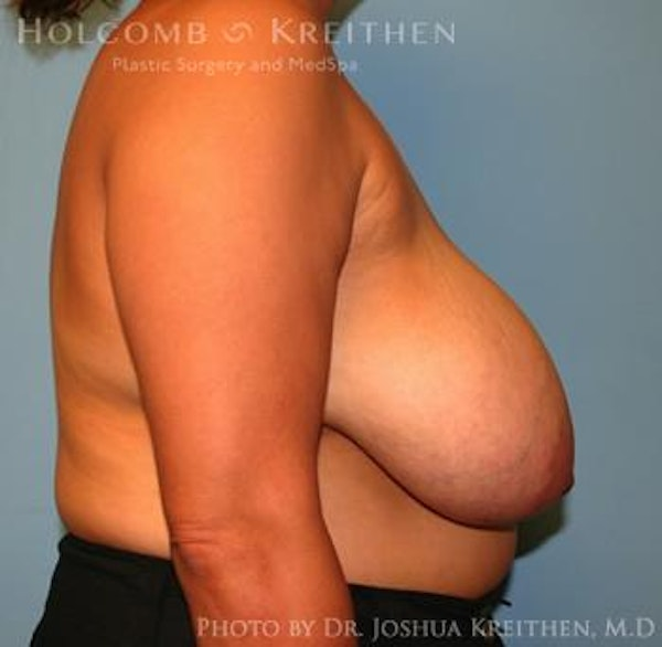 Breast Reduction Gallery - Patient 6276542 - Image 5