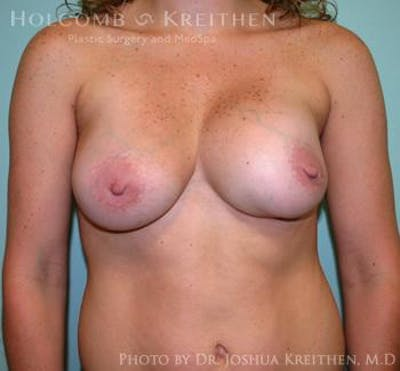 Breast Revision Gallery - Patient 6276543 - Image 1