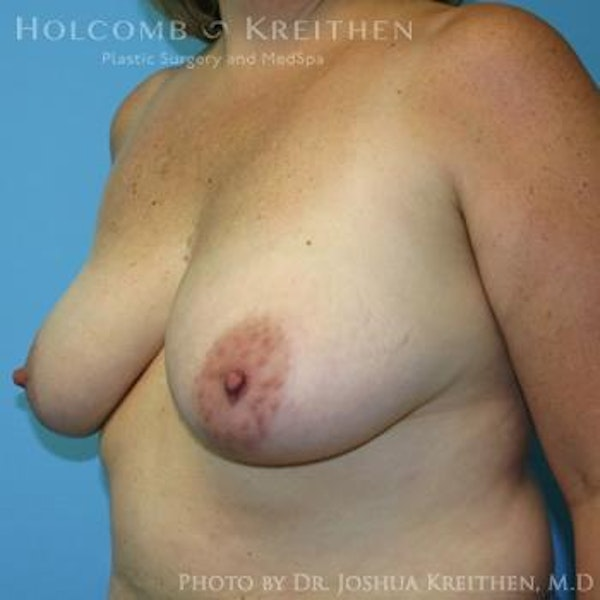 Breast Lift Gallery - Patient 6276545 - Image 3