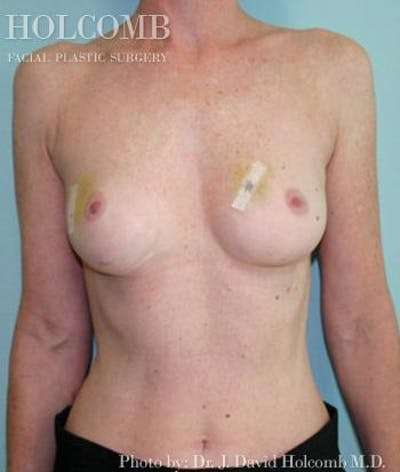 Breast Reconstruction Gallery - Patient 6276544 - Image 1