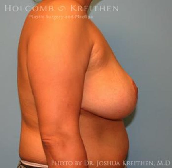 Breast Reduction Gallery - Patient 6276542 - Image 6