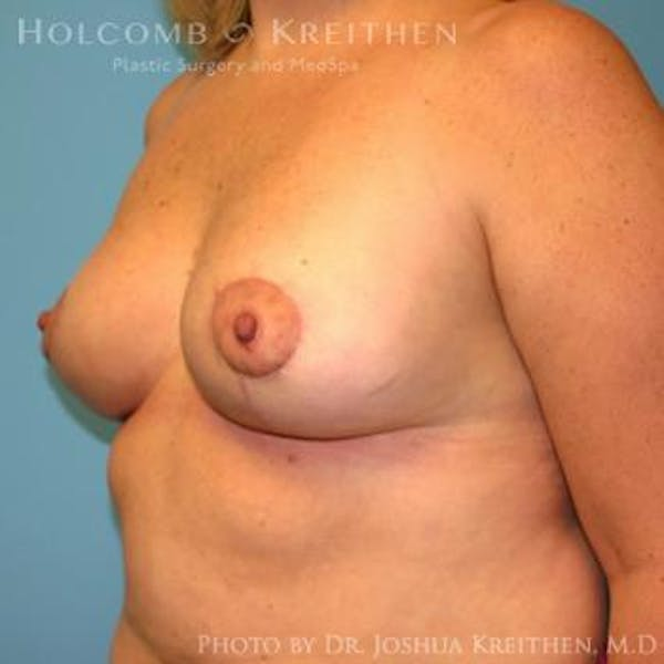 Breast Lift Gallery - Patient 6276545 - Image 4