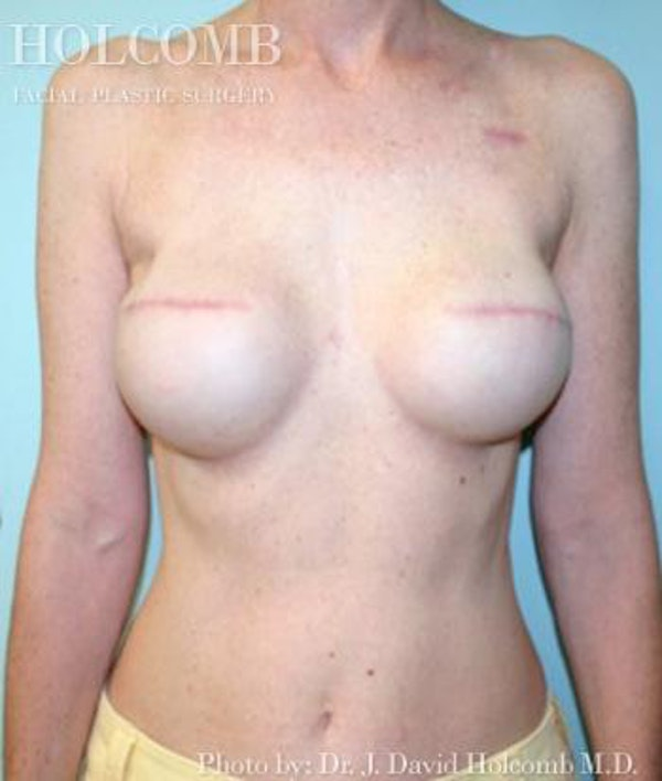Breast Reconstruction Gallery - Patient 6276544 - Image 2