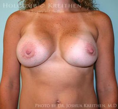 Breast Revision Gallery - Patient 6276543 - Image 2