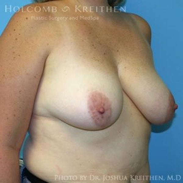 Breast Lift Gallery - Patient 6276545 - Image 5