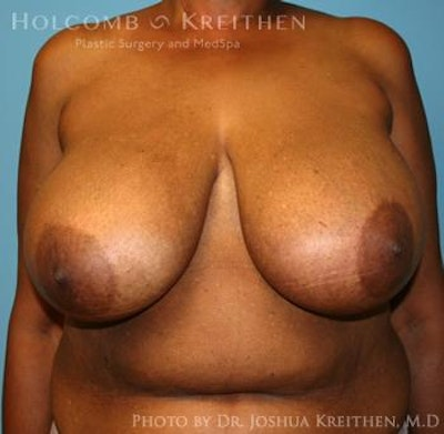 Breast Reduction Gallery - Patient 6276546 - Image 1