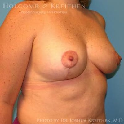 Breast Lift Gallery - Patient 6276545 - Image 6