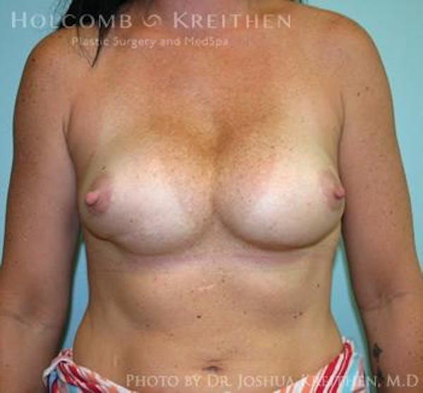 Breast Revision Gallery - Patient 6276553 - Image 1