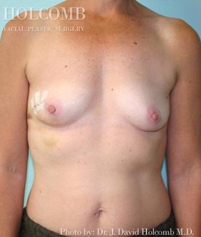 Breast Reconstruction Gallery - Patient 6276560 - Image 1