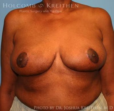 Breast Reduction Gallery - Patient 6276546 - Image 2