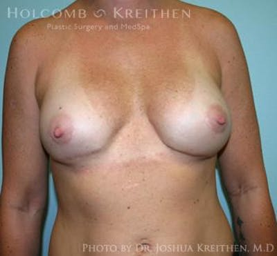 Breast Revision Gallery - Patient 6276553 - Image 2