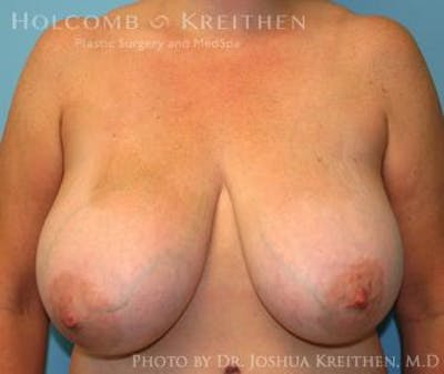 Breast Reduction Gallery - Patient 6276563 - Image 1