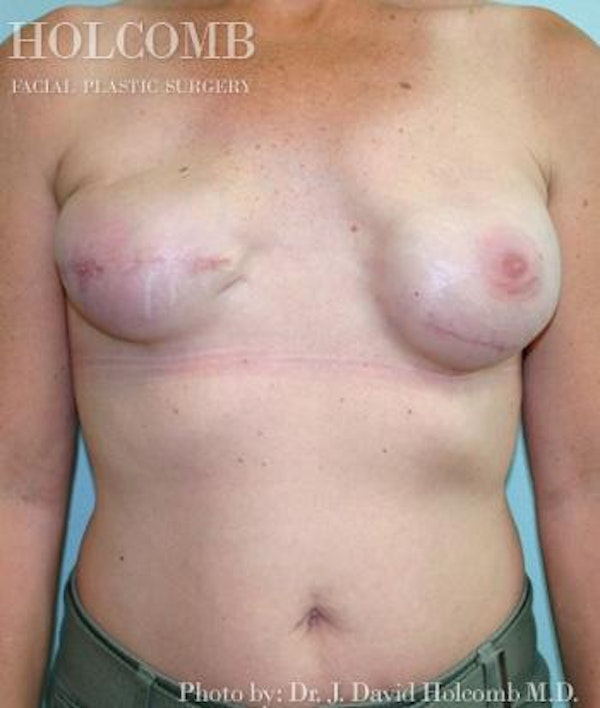 Breast Reconstruction Gallery - Patient 6276560 - Image 3