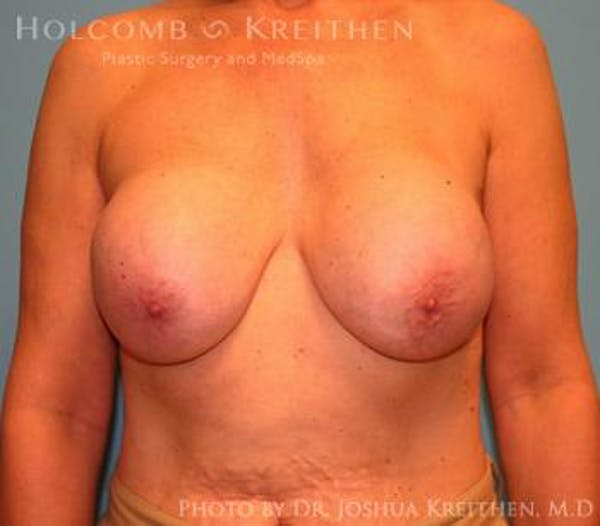Breast Revision Gallery - Patient 6276564 - Image 1
