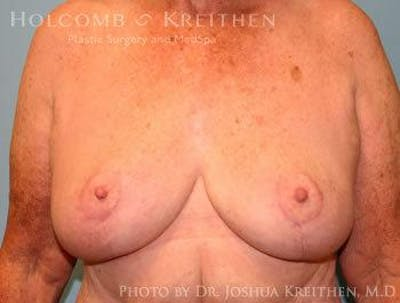 Breast Lift Gallery - Patient 6276562 - Image 2