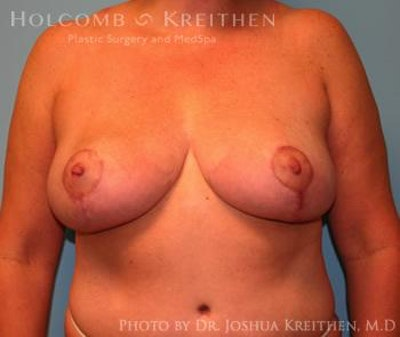 Breast Reduction Gallery - Patient 6276563 - Image 2