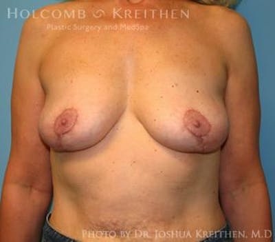 Breast Revision Gallery - Patient 6276564 - Image 2