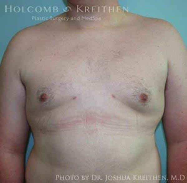 Gynecomastia Gallery - Patient 6276561 - Image 2