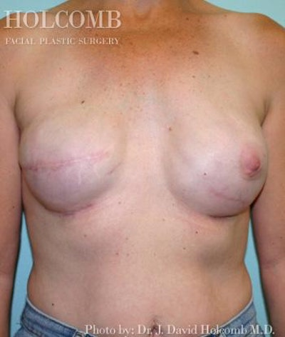 Breast Reconstruction Gallery - Patient 6276560 - Image 4